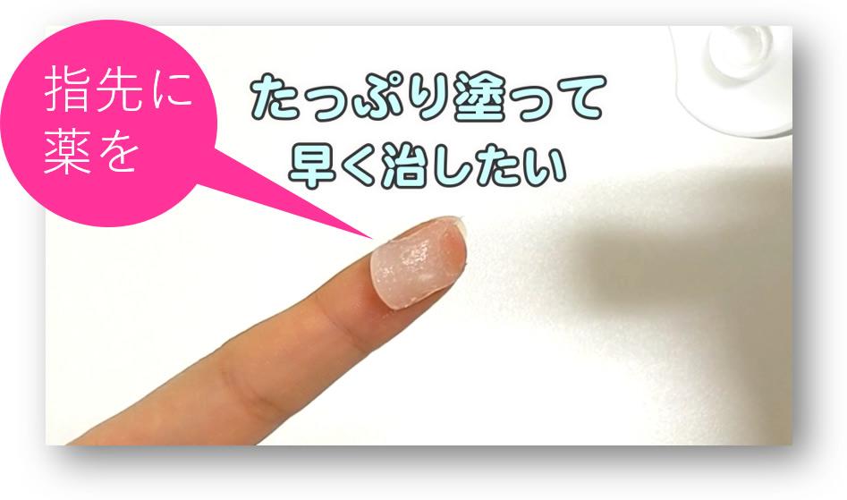 「指先に薬を」たっぷり塗って早く治したい